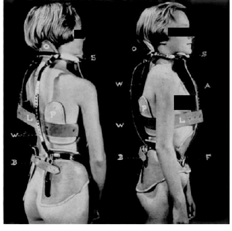 2 side by sde b/w photos of a young white woman wearing only a Milwaukee back brace, with black bars covering her eyes and breasts. On the left is her back, on the right, she's in profile.